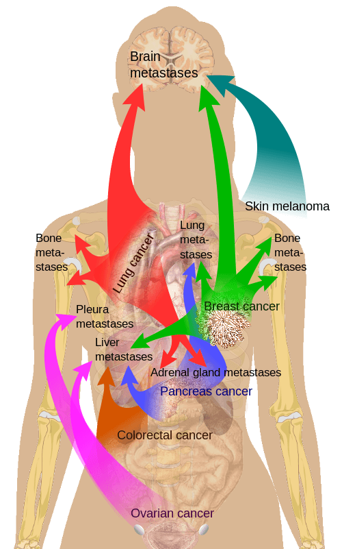 Main sites of metastases in some common types of cancer