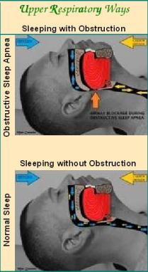 Illustrations of Sleeping with Obstruction (Obstructive Sleep Apnea) and Sleeping without Obstruction (Normal Sleep)